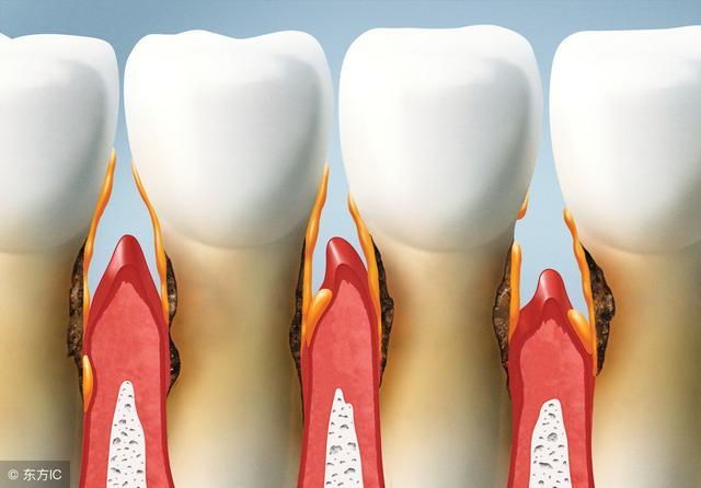 牙齦出血,用它泡水喝,哪怕是牙周炎,口臭,一個不漏!
