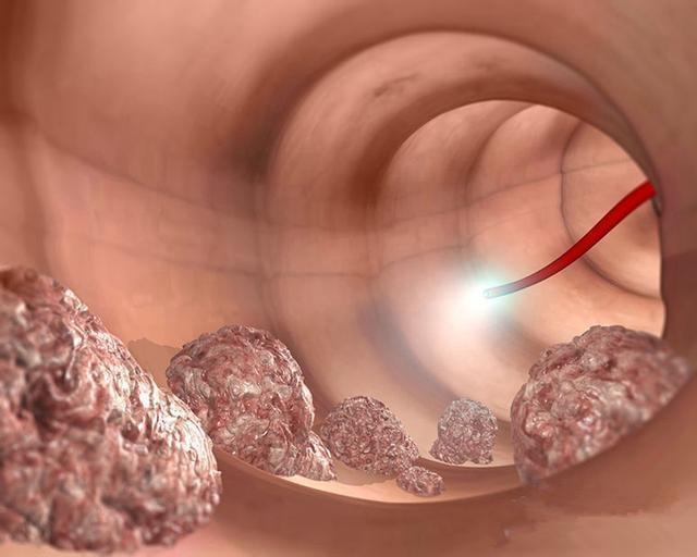 32歲女白領查出腸癌離世,醫生解釋:兩個習慣害的!