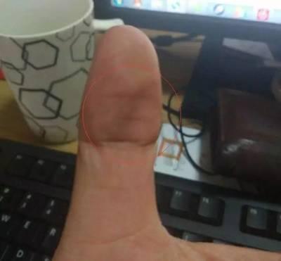 大拇指出現這一信號,就是中風前兆!防中風教您一套手指操!