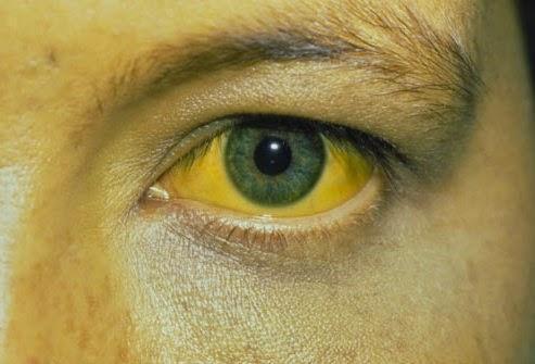 當眼睛出現這7個現象時,說明肝臟已經中毒太深,中醫教你如何給肝臟洗澡排毒!