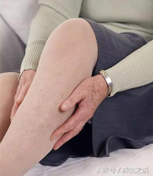血脂高的人,身體會有4個表現,降血脂,防血栓,做好4件事!