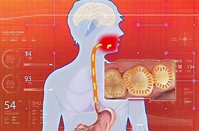 胃癌5年生存率不到一成,癌前病變前有這「3徵兆」,「4種食物」千萬別過量 - 讀讀
