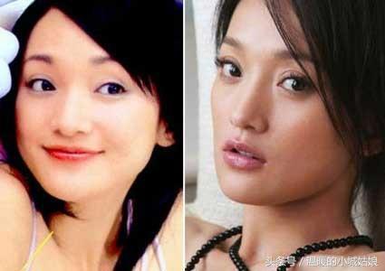 「割過雙眼皮」的10位明星,戚薇美出新高度,薛之謙像換了一個人