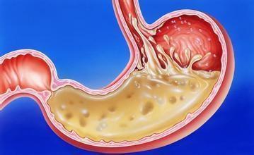 23歲胃癌晚期,醫生說天天吃這三樣誰都容易患癌!