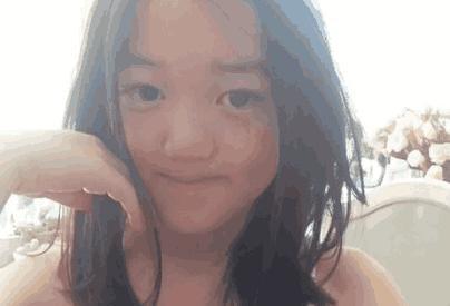 李嫣第三次兔唇微整,術後顏值恢復,網友:看完照片不想說話了