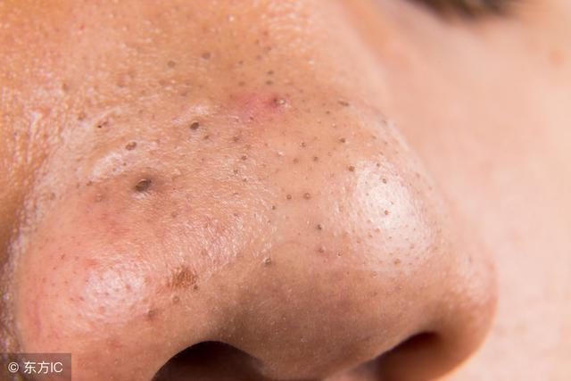 鼻子上擠出「黃粒粒」,是蟎蟲擠在裡面爬,教你兩招,蟎蟲不敢來