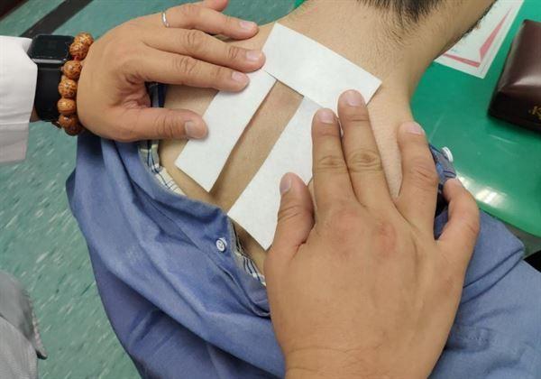 中醫冬季三九貼使用辛散溫熱的中藥,敷貼在人體背部的適當穴位,達到驅寒、提升抗病力的功效,針對過敏性鼻炎患者治療效果尤佳。(圖片提供/台南奇美醫院)