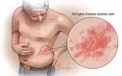 「帶狀疱疹」—纏腰龍,疼痛難忍,不吃藥,試試三種民間小方法!