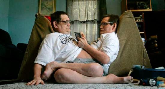 世界各地罕見的「連體雙胞胎」,他們的樣子連醫生看了都束手無策!第一個怎麼「排便」?