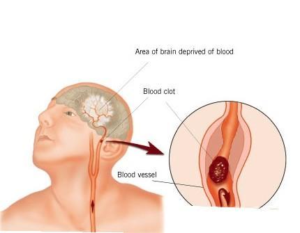 醫生告誡:4個徵兆說明你的血管堵塞,血液粘稠如粥,早送醫,能活命!
