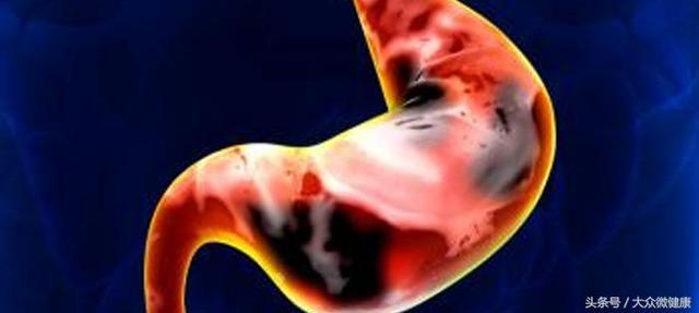 26歲男子查出胃癌離世,醫生嘆息:早期身體發出的警報不重視