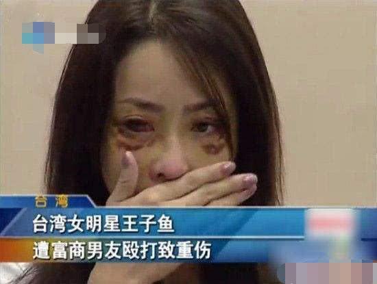 女星遭51歲富商男友家暴,打成腦震盪頭骨骨折還吐血慘不忍睹
