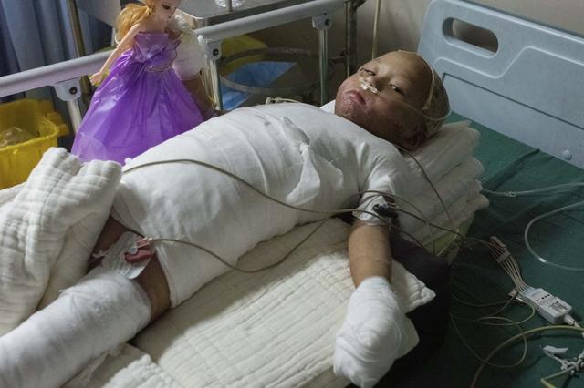 4歲女童全身嚴重燒傷,崩潰痛哭:「哥哥為什麼要拿火燒我」