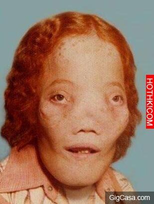 他天生臉部畸形遭到霸凌,醫生要幫他整形時,X光掃瞄頭部竟然發現...他雖然只活了16年 ...