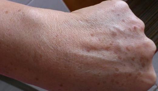 老年斑是衰老的象徵,出現了別擔心,2個小動作讓你告別老年斑重回年輕