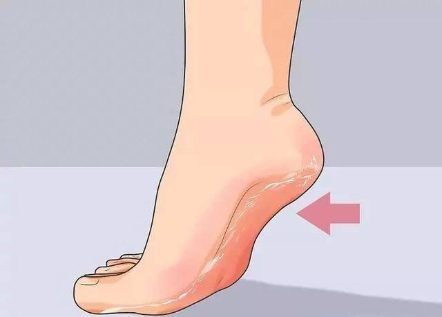 腳後跟總是乾裂、起皮?很可能是缺少這2種維生素!4招教你妥善解決 !