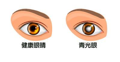 眼部寒冷損傷視神經小心青光眼,眼科醫師:一條毛巾護眼一把罩