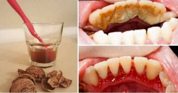 「牙結石」「口臭」難消除?教你一個簡單天然辦法,不用看醫生,牙結石嘩嘩往下掉
