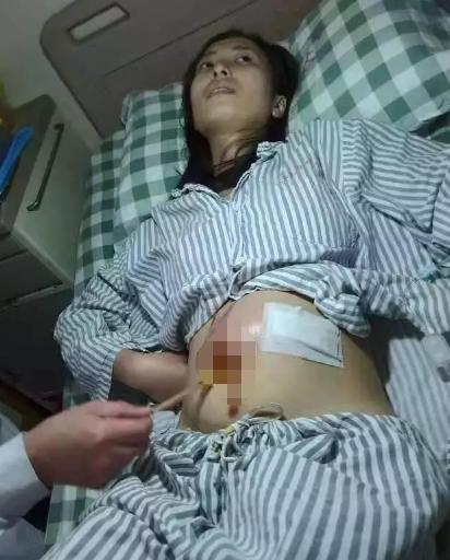23歲女生腹大如球,一上救護車,醫生就說「不用救了」!女人都要小心…