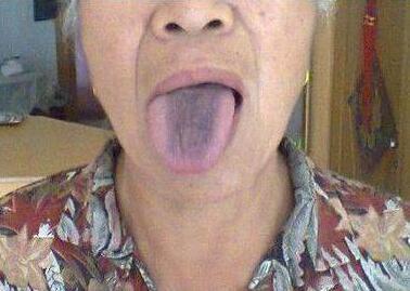 從舌頭一眼看是否癌症體質,癌細胞最怕1種鹼性食物,常吃防癌