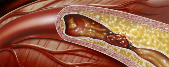 40歲後,血管會堵塞,1個動作1杯水,讓血管幹凈如初!