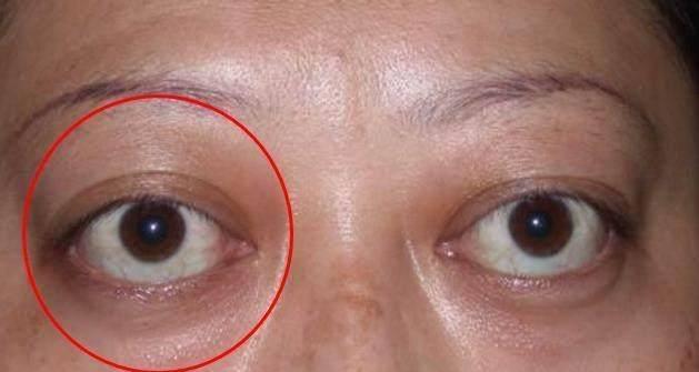 一旦眼睛出現這「8種癥狀」要當心,這可能是大病的徵兆,要及時就醫