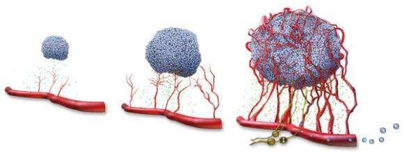 終於找到癌症的禍根,醫生提醒:不要指望食物抗癌,防癌要這樣做