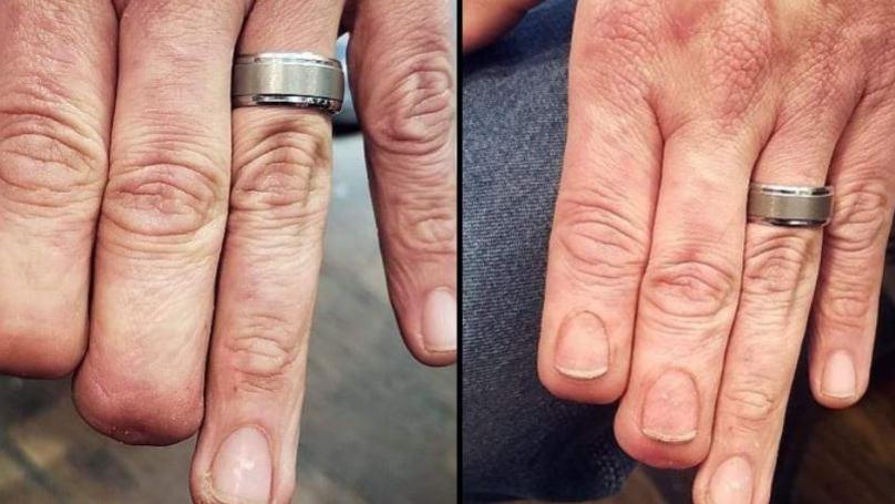 缺兩指被當作異類 刺青師巧手幫他「長回來」被網讚嘆(5P)