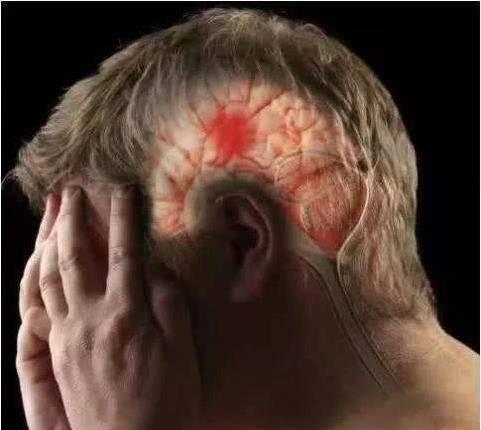 腦梗「禍根」不是菸酒,這4種食物儘量少吃,多吃一口血管可能多堵1分