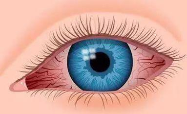 肝毒多,眼睛會有4種表現,經常做3個動作,助力肝臟健康