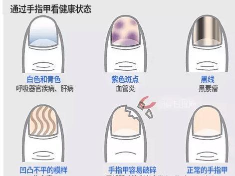 手指甲出現了黑線,不要忽視,可能是癌症早期的信號