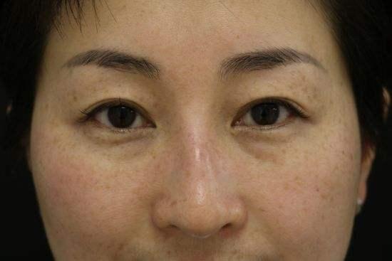 臉上有黃褐斑,每天塗塗它,安全又有效