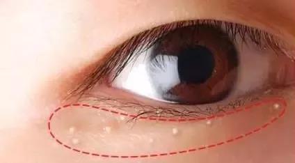 醫生告誡:眼睛出現7個症狀,提示大病潛伏在身體,趕緊上醫院!