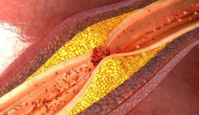 血管有油怎麼刮油去脂?