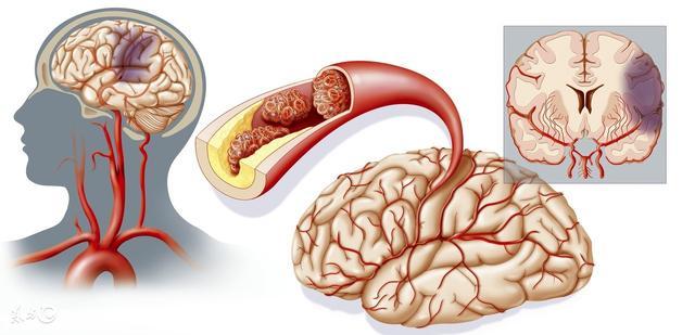 冬天出現了血管的「清道夫」,吃一個通一個,血管一生不硬也不堵