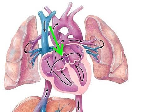 醫生披露:你的身體裏有沒有血栓,量量兩條小腿就知道!