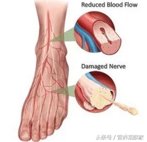 血管堵沒堵,摸摸腳背就知道!一個動作,讓全身血液流通起來
