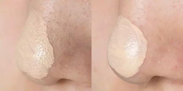 鼻子上很多白色發臭小顆粒,還容易變痘痘,4步驟清除後很少長了