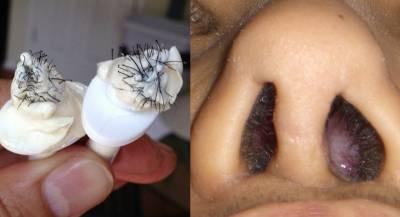 鼻毛就算長到很醜,也千萬不要這麼做...,否則絕對後悔一輩子!!