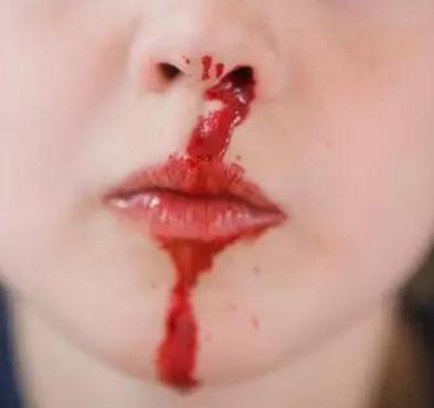 8歲孩子流鼻血搶救無效死亡,父母大哭,後悔當初不該逼孩子