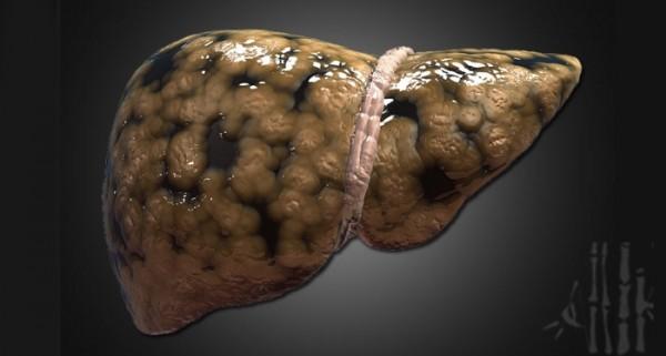 為什麼「肝癌」一發現就是晚期?如果有「這3種症狀」 就一定要注意了!