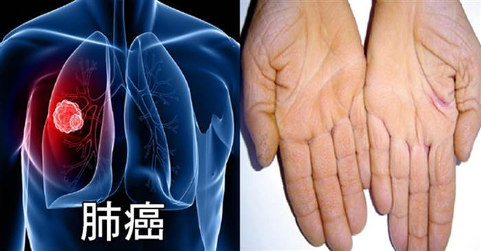 「肺癌」蟬聯8年奪命癌癥第一名!「8大警訊」絕對不可忽略,早期治療存活率高