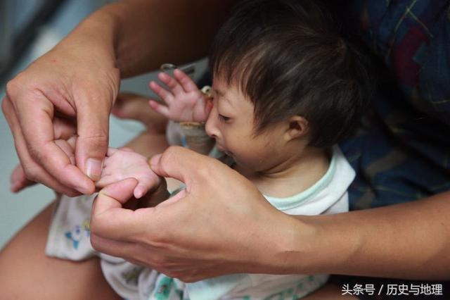 直擊罕見的袖珍寶寶,媽媽的笑臉讓人溫暖
