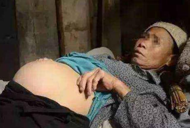 六旬老人意外懷孕,兒女勸其打掉,老人掀開衣服,讓家人跪地哭泣