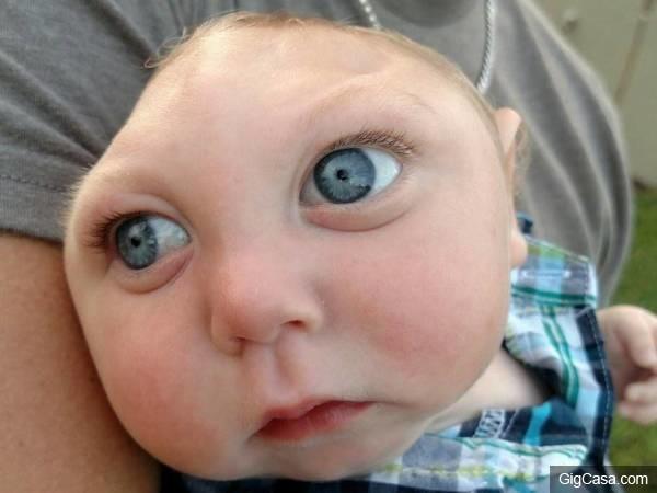 這名患有「平腦症」小男嬰醫生都說沒救了,但他長大後的模樣真的是我看過最可愛的寶寶!