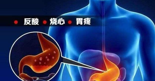 按1按手心窩、再吃10顆花生米,胃反酸、打嗝、噯氣,通通可緩解