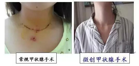 甲狀腺結節手術泛濫!良性結節率95%,多數「開了不該開的刀」