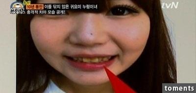 韓國美女美容師竟然10年沒刷過牙了?一開嘴直接.....太噁心了!!!