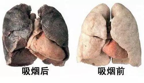遠離肺癌!每天三杯茶可以戒煙!