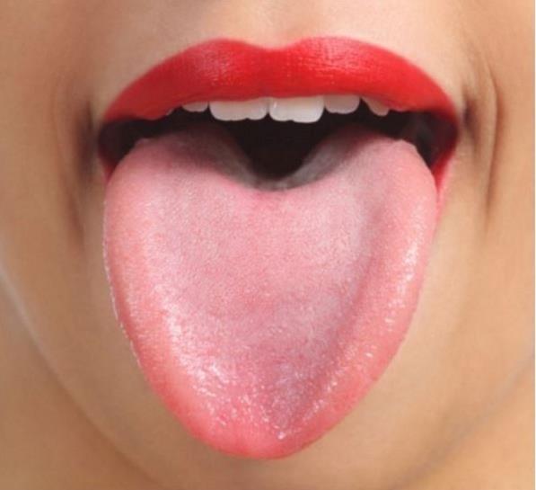 現在就伸出你的舌頭看看,如果出現這些狀況的話可要小心了!